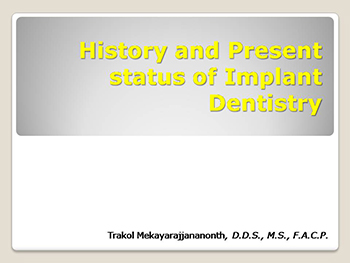 History And Present Status Of Implant Dentistry