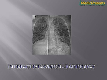 INTERACTIVE SESSION - RADIOLOGY