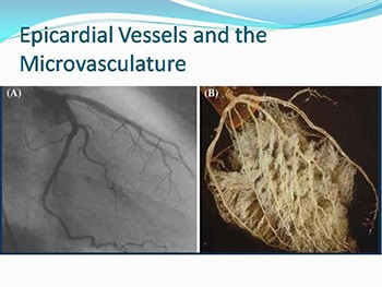 Coronary blood flow reserve