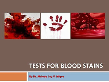 Unit 2 Forensic Serology  2 (Tests for Blood Stains)