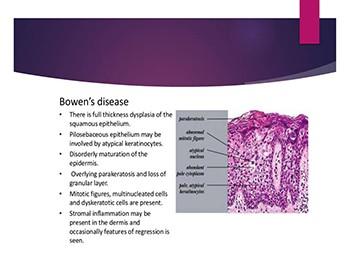 Bowens Disease