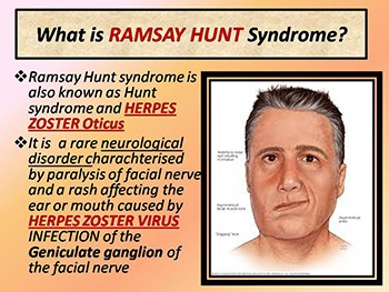 Ramsay Hunt syndrome