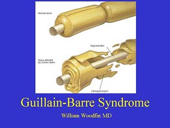 About Guillain Barre Syndrome