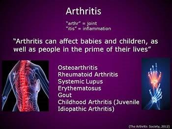 Rheumatoid Arthritis Osteoarthritis and Systemic Lupus Erythematosus
