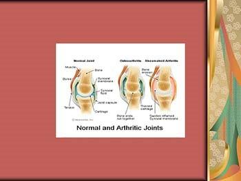 Rheumatoid Arthritis An Autoimmune Mystery