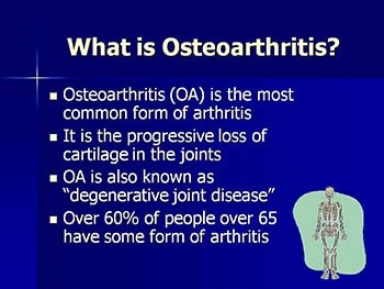 Medications for Osteoarthritis - Relieving the Pain
