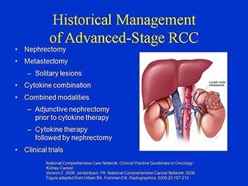 Nexavar in Patients with Renal Cell Carcinoma