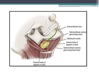 Submandibular gland: Surgical Anatomy Tumors Surgery