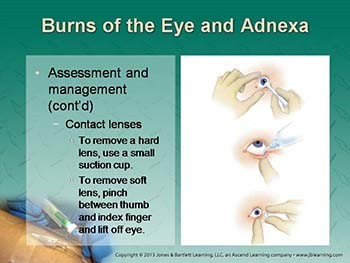 Diseases of the Eyes Ears Nose and Throat