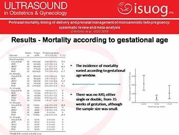 Perinatal mortality timing of delivery and prenatal management of monoamniotic twin pregnancy