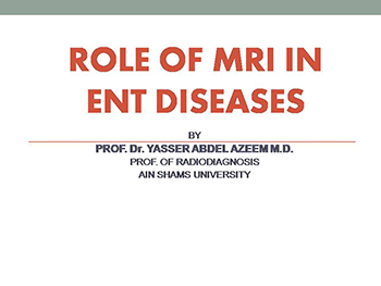 Role Of Mri In Ent Diseases