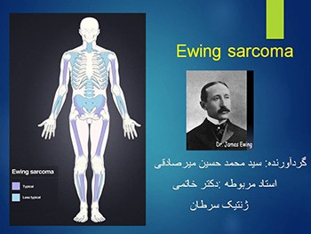 Ewing Sarcoma Family Tumors