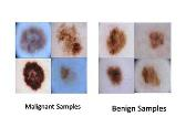 Lightweight Deep Learning on Smart Device for Early Detection of Skin Cancer