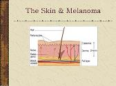 Skin Cancer: What You Should Know