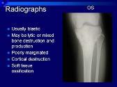 Bone and Soft Tissue Sarcomas