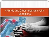 Arthritis and Other Important Joint Conditions