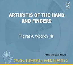 Hand And Finger Arthritis Nmh