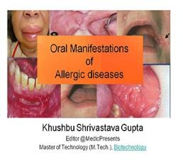 Oral Manifestations of Allergic Diseases